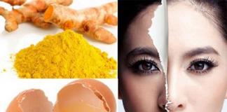Cách làm mặt nạ tinh bột nghệ và lòng trắng trứng gà