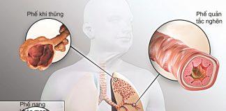 dấu hiệu không ngờ cảnh báo bệnh phổi